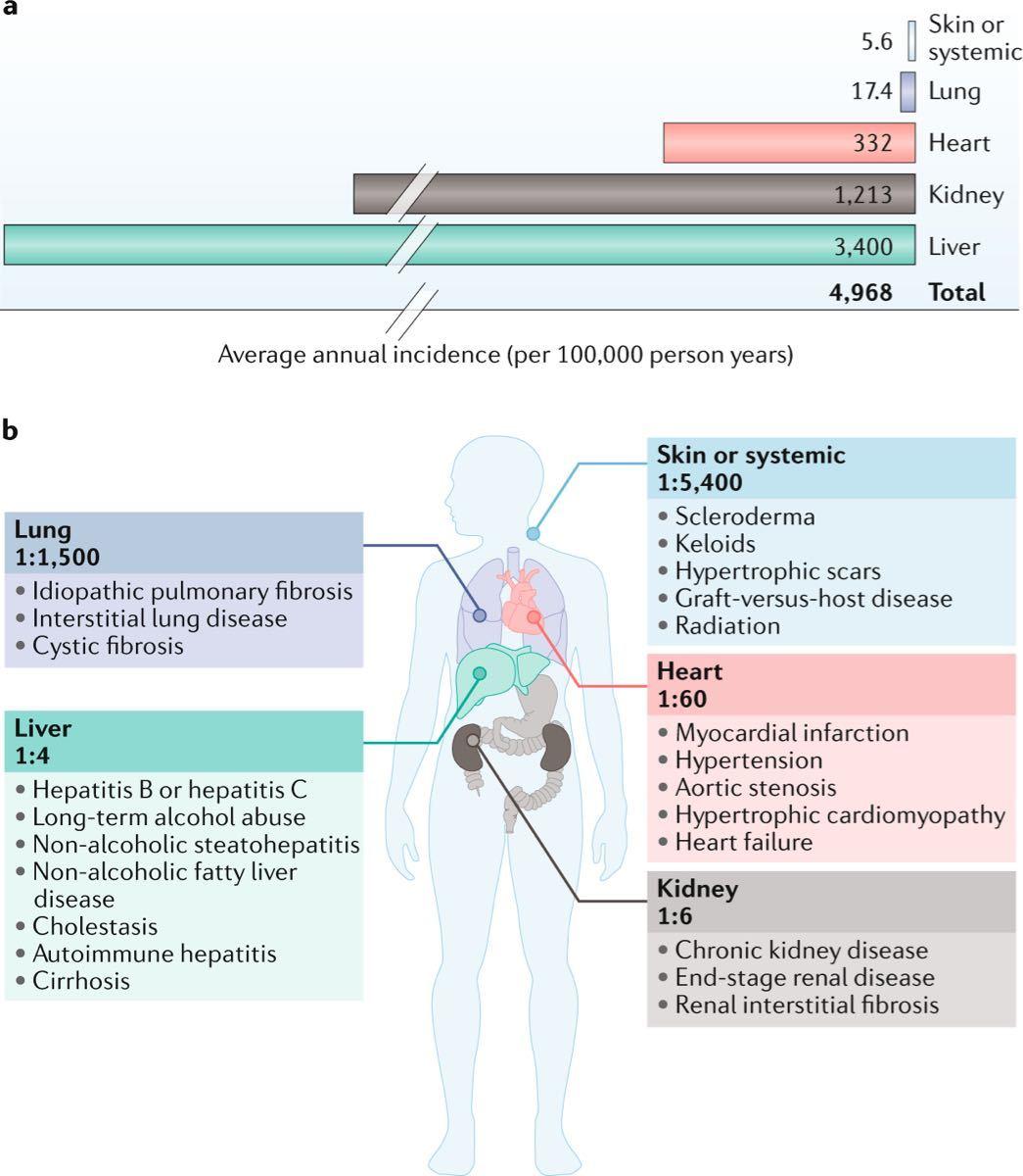 2160 ‐(株)ジーエヌアイグループ F351が対象とする病気について  8月の日本のIRでは治療薬として、 「肝線維症への治療薬の可能性