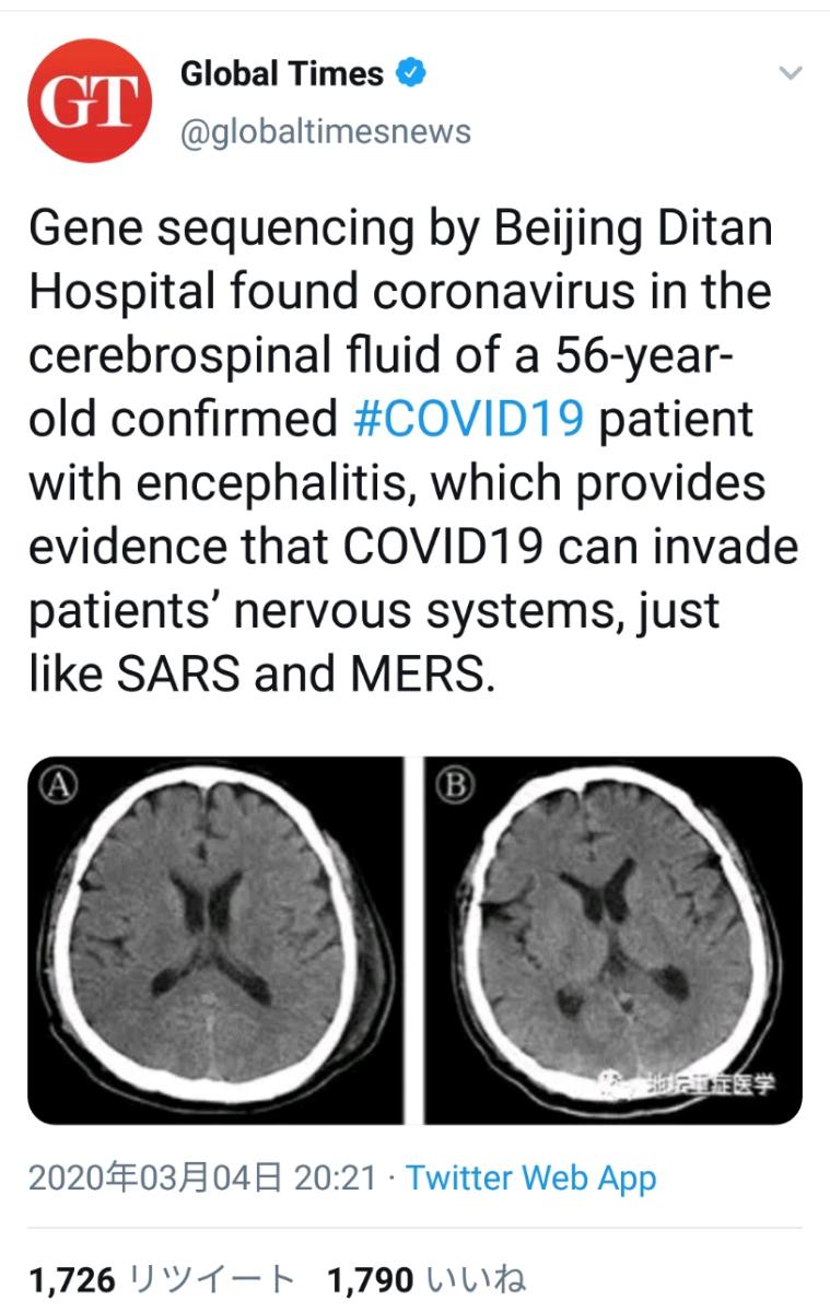 998407 - 日経平均株価 新型コロナが普通のインフルエンザ程度のものではない事が確認された。SARSやMERSと同じクラス神経