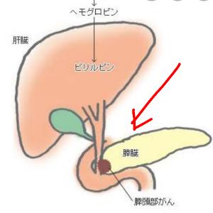 4571 - ナノキャリア(株) 膵臓の位置   非常に見つけ難いと言う。  ⬇️⬇️