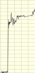 4502 - 武田薬品工業(株) 来月には急騰すると聞いてます 予想チャート📈