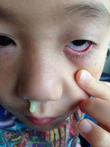 6636 - (株)ソルガム・ジャパン・ホールディングス > 今でも、あおっぱな 垂れのガキンチョがいたとは?   見っけ!  ミー太郎の子供時代の写真