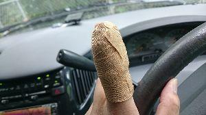人恋しや 腫れ具合が、イマイチわからないですね。 腫れと痛みと。その間に、右手薬指もやっちゃって(-_-)