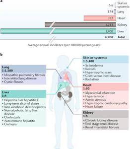 2160 ‐(株)ジーエヌアイグループ F351は多臓器の線維化を制するか❗️❓  F351 は下のような働きで線維化を抑えると書かれていま