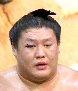 日馬富士の貴ノ岩暴行問題 貴ノ岩義司です。まぶたが黒ずんだ頃に体調不良になりました。まったく原因もわかりませんでしたのでとても