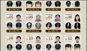 2929 - (株)ファーマフーズ ファーマフーズも発毛コンテストするんですって。