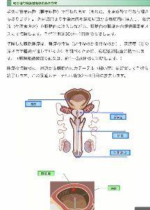 d○k○のひとりごと 馬鹿バカーーーーーー   膀胱と アレは 別 だわ‼️   膀胱の中に ある  腫瘍を切除するんだよ