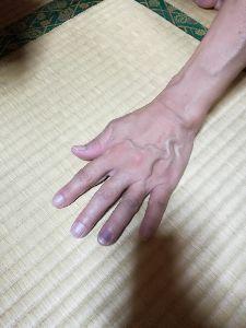 難聴の人達は幸せ? こんばんは  打撲の指がまた痛いです。 明日 痛みがある時は病院に行きます。   ヤットさん  手は