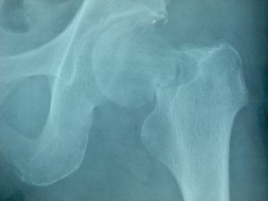 99年〔放送事故サギ事件容疑〕2011年2月 骨盤と判定を新協和病院でされていたけど田島先生によると足の付け根の骨がこなごなで少しとって人工骨をつ